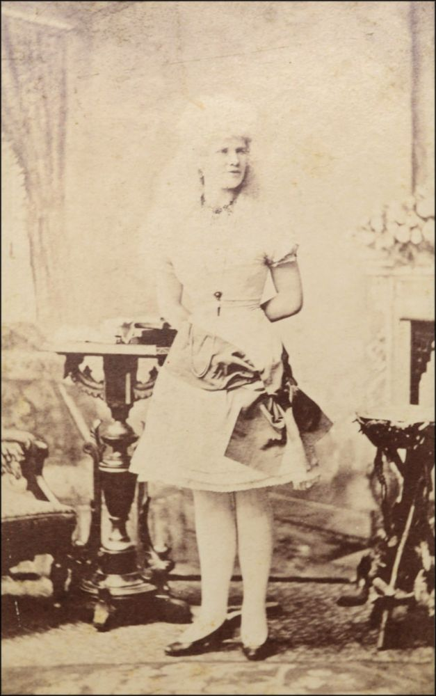 Carte De Visite CDV Studio Portrait Of An Albino Sideshow Performer